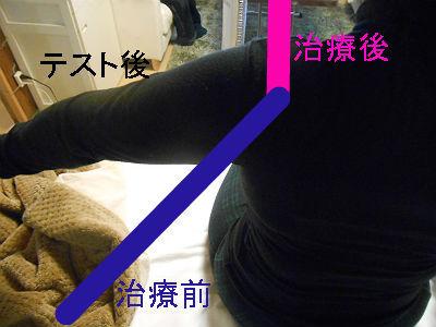 枚方・ささないはりで肩こり知らず!体質根本改善は心合いの風鍼灸院
